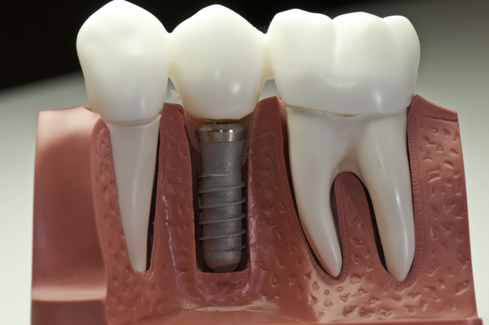 dental implants in red deer how a healthy mouth contributes to their success