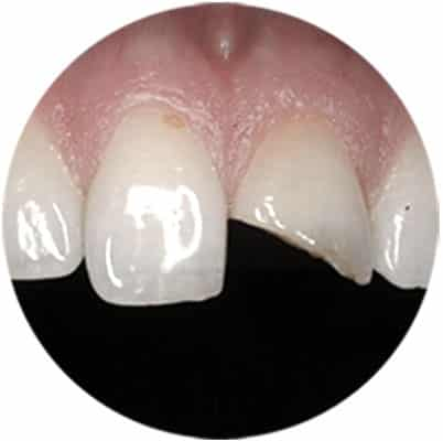 Dental Bonding Treatment in Red Deer