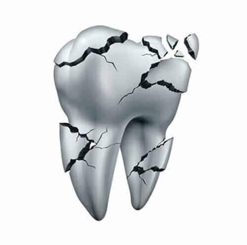 Broken Tooth Treatment in Red Deer