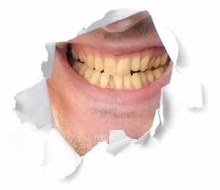 coloured_teeth
