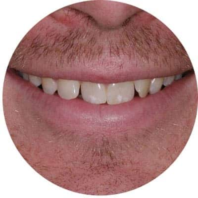 Crooked Teeth Treatment in Red Deer