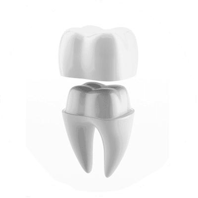 Dental Crowns Treatment in Red Deer