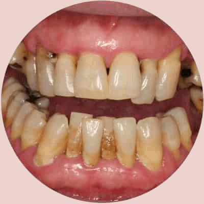 Gum Disease Treatment in Red Deer