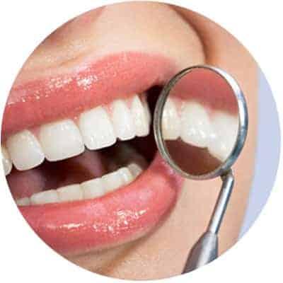 Missing Teeth Treatment in Red Deer