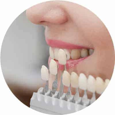 Dental Veneers Treatment in Red Deer