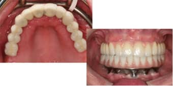 porcelain_teeth