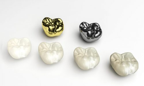 reasons for dental crowns
