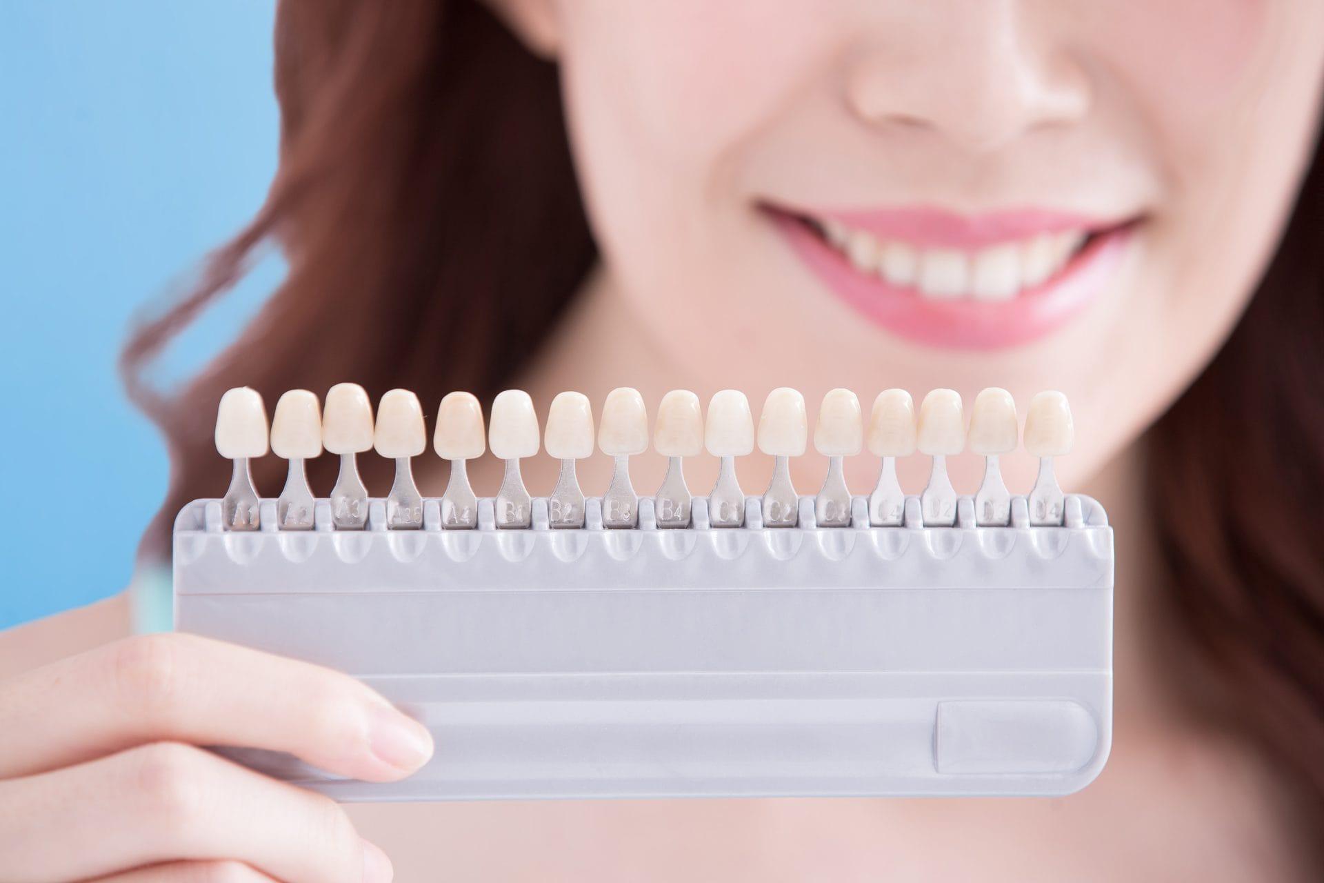 whiten-your-teeth-red-deer-dentistry