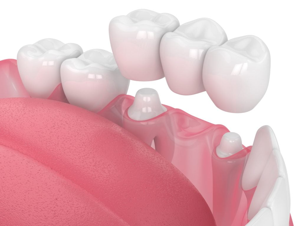 how to care for your dental crowns