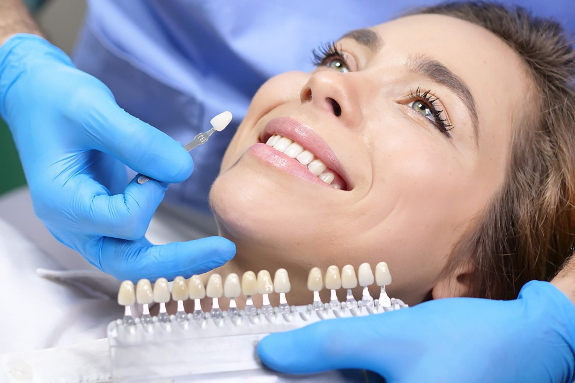 how many kinds of veneers are there