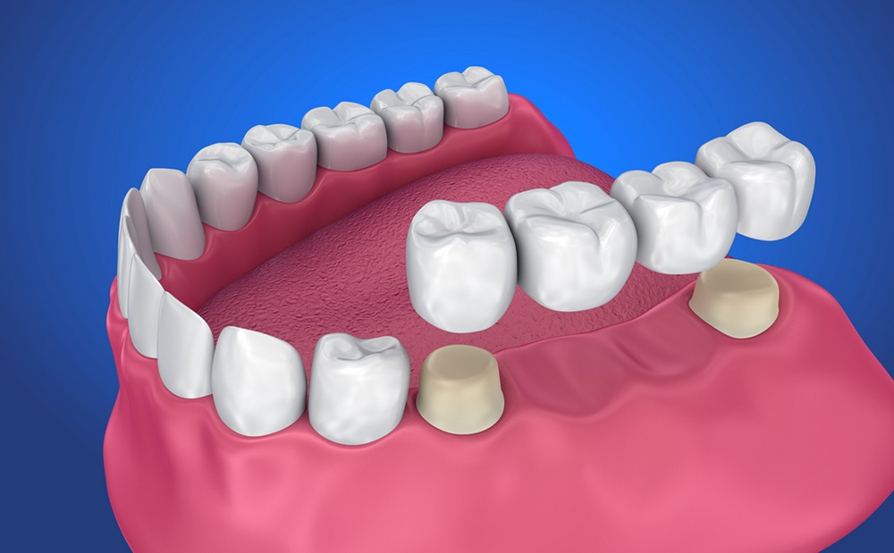 dental bridges: a great option for replacing missing teeth